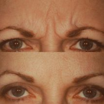 botox before and after above eyes and eyebrows