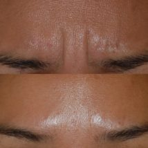 botox before and after forehead and eyebrows