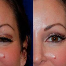 botox before and after above eye