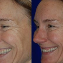 Botox before and after crows feet