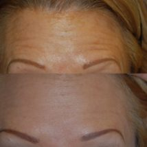 Botox before and after woman's forehead