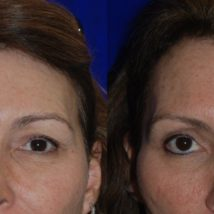 botox before and after Juvederm Botox filler